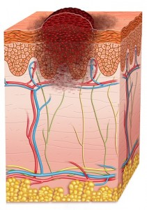Skin Cancer Reduced