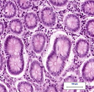 normal colon tissue under the microscope