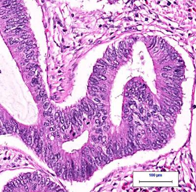 colon cancer under the microscope